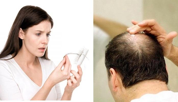 Đi tìm nguyên nhân rụng tóc nhiều do thiếu chất gì